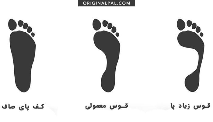 انواع قوس پا و کفش مناسب برای کف پای صاف و قوس پای زیاد