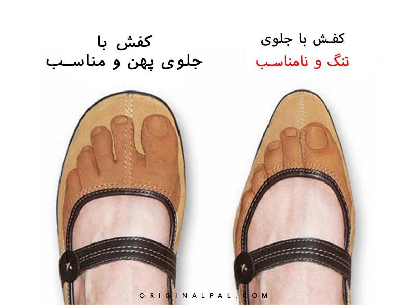 تاثیر کفش تنگ بر تغییر شکل انگشتان پا