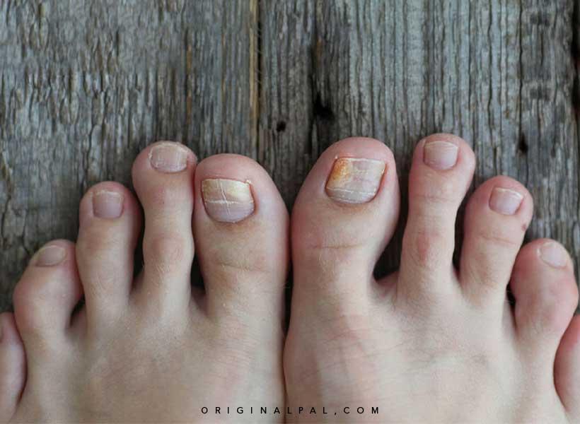 التهاب ناخن پا در اثر پوشیدن کفش نامناسب