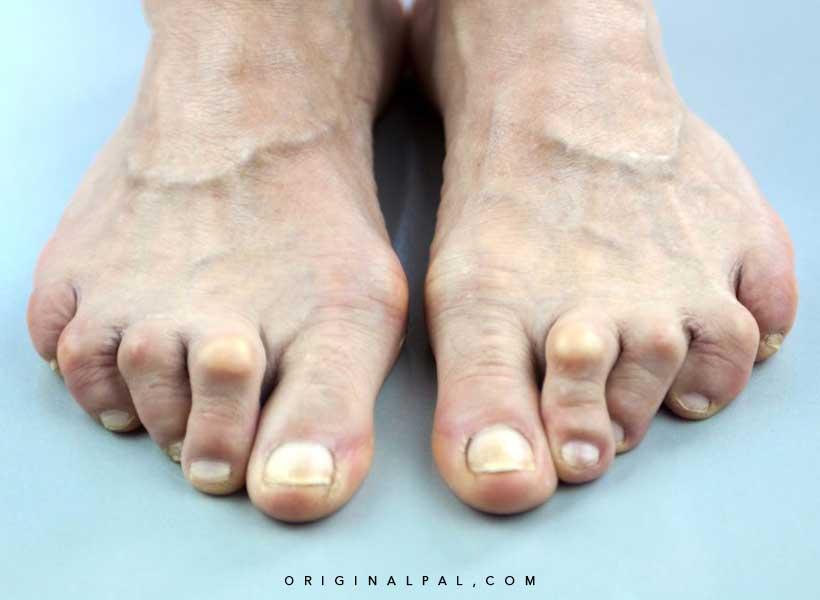 انگشت چکشی در اثر پوشیدن کفش نامناسب
